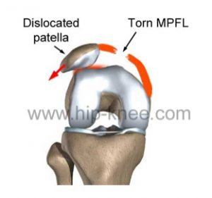 patella-dislocation-img1